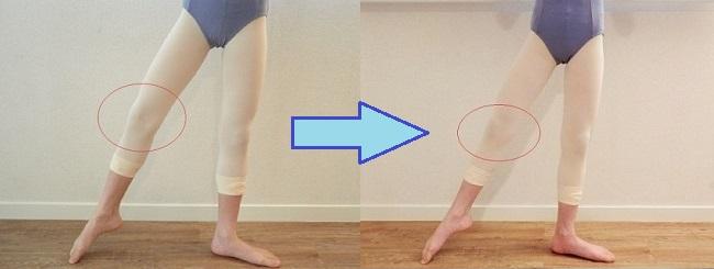 バレエ整体・タンジュの改善例