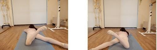 バレエ整体・アンディオールの改善例