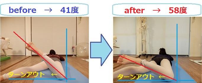 アンディオール改善(ターンアウトの可動域を拡大)