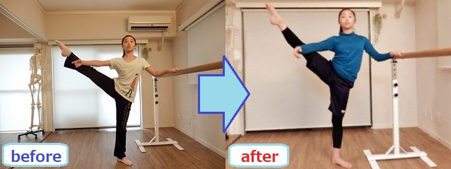 バレエ整体・アラスゴンドの改善例